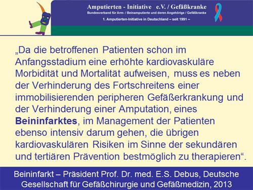 Zum Beininfarkt: Der Präsident der Deutschen Gesellschaft für Gefäßchirurgie und Gefäßmedizin, Professor Dr. med. E.S. Debus, 2013